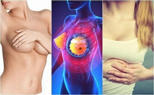 7 Symptoms of Breast Cancer and How to Prevent