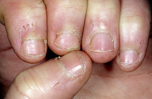 AFTER YOU KNOW THIS, YOU WILL NEVER GO TO ROER NAILS!