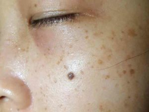 Alterações na pele