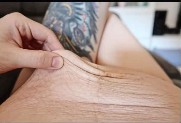 pele de barriga