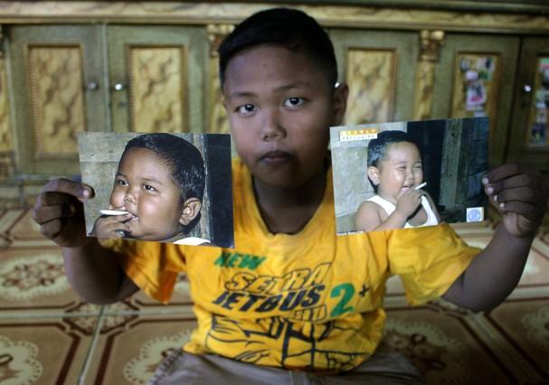 Ardi Rizal-antes-depois