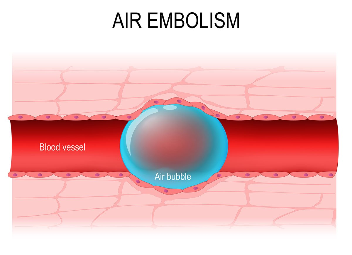 a embolia gasosa